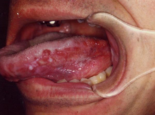 Ung thư lưỡi giai đoạn cuối