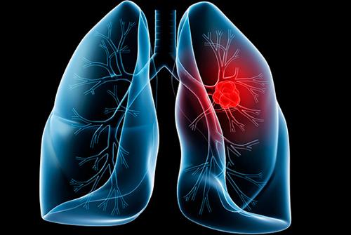 Thuốc chữa bệnh ung thư phổi
